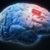 Имплантаты для головного мозга восстанавливают утраченные воспоминания